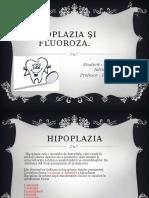 Hipoplazia şi   Fluoroza