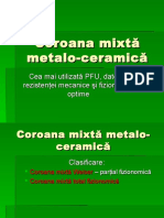 Coroana Mixtă Metalo-ceramică