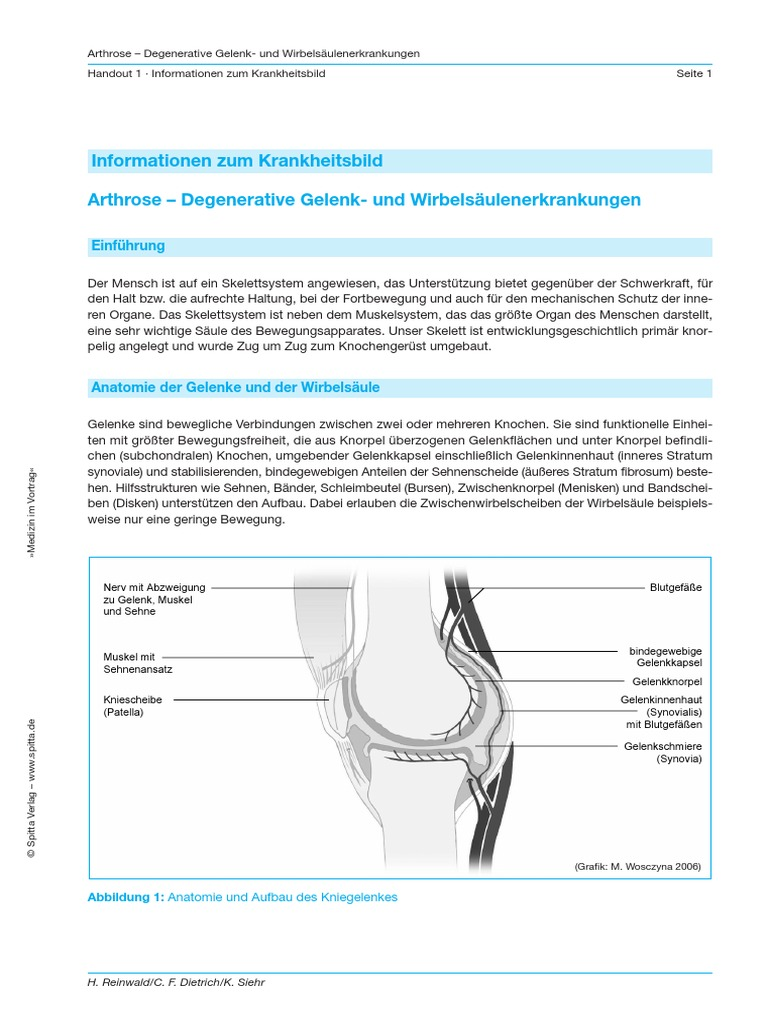 Arthrose Handout - Information