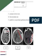Menghitung Volume Perdarahan Otak