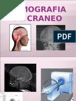 Craneo TAC