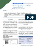 Guidelines for Treatment Planning of Mandibular Implant Overdenture