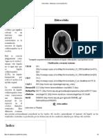 Hidrocefalia - Wikipedia, La Enciclopedia Libre