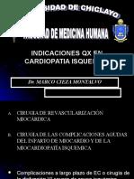 Qx Cardiopatia Isquemica