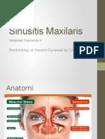 Sinusitis Akhir