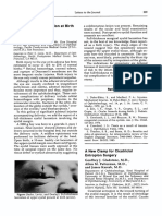 American Journal of Ophthalmology Volume 102 Issue 4 1986 [Doi 10.1016_0002-9394(86)90094-2] Sachs, David; Levin, Peter S.; Dooley, Kevin -- Marginal Eyelid Laceration at Birth
