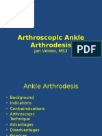 Arthroscopic Ankle Arthrodesis