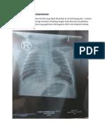 Gambaran Radiologi Bronchopneumonia