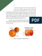 Vaskularisasi Retina