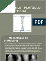 Platou Tibial-fr Diaf Oase Gamba,Gr 33