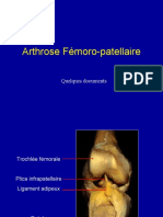 13 Arthrose Fémoro Patellaire