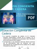 Luxación Congenita de Cadera