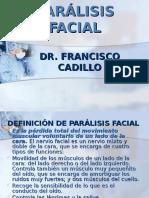 7-paralisis-facial.ppt