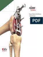 Tecnica Quirurgica PTG Sygma