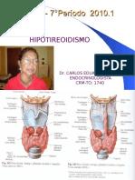 Hipotireoidismo Aula 1