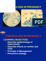 5.Tuberculosis in Pregnancy