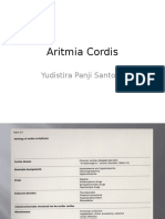 Aritmia Cordis