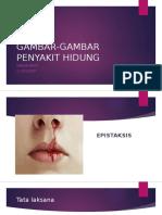 GAMBAR-GAMBAR PENYAKIT HIDUNG.pptx