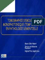 Neurologie SPECT Ou TEMP Et Démences. Habert Mai 2005