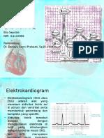 EKG NORMAL Referat Eko