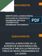 Endocarditis 2012