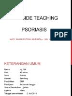 BST Psoriasis