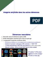 Plaques Amyloides Dans Les Démences Non Alzheimer Dr-KAS Neurologie Janvier 2012