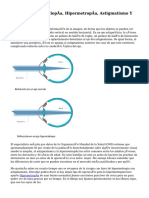 Diferencia Entre Miopía, Hipermetropía, Astigmatismo Y Presbicia