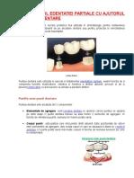 Tratamentul Edentatiei Partiale Cu Ajutorul Puntilor Dentare