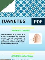 Juanetes.pptx