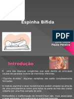 Espinha Bifida