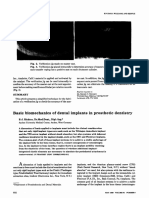 implant biomechanics jpd