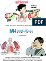 How Asthma Attacks & What Causes Asthma