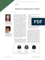 Finasteride en Alopecía Femenina