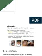 Hidrocele e Distopias Testiculares
