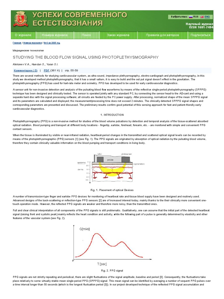 Studying The Blood Flow Signal Using Photoplethysmography Analogue Radio Control By Sm0vpo Pdf Heart Rate Amplifier