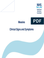Measles Clinical Signs Symptoms