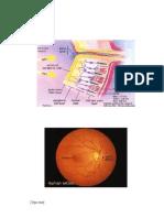 refrat retinopati diabetik