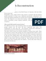 Full Mouth Reconstruction - by John Utama