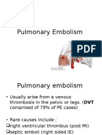 Pulmonary Embolism and Aortic Dissection