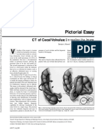 Cecal Volvulus - American Journal Roentgenology