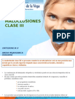 Expo. Clase III Ortodoncia