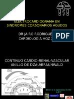 Electrocardiograma en Sindromes Cor5onarios Agudos