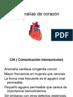 Anomalías de Corazón Imagenes