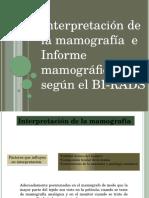 Interpretacion de Mamografia