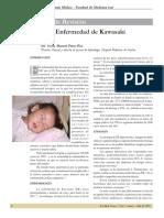 Artículo de Revisión Enfermedad de Kawasaki