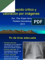 UCI 5. RN Critico y Valoracion Por Imagenes