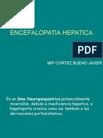 Encefalopatía Hepática. MIP