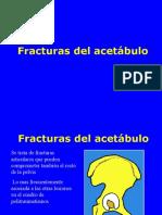 04- Fracturas de Acetabulo