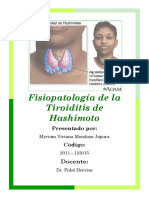 Fisiopatología de La Tiroiditis de Hashimoto